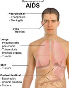 penyakit hiv / aids
