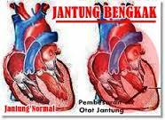 pembengkakan jantung dan pengobatan herbal