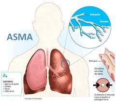 Penyakit Asma Herbal