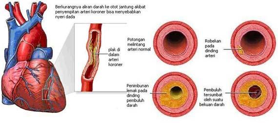 Obat Tradisiobal Jantung Koroner