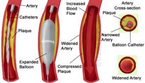 obat tradisional penyakit jantung terlaris