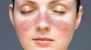 penyakit lupus dan pengobatannya